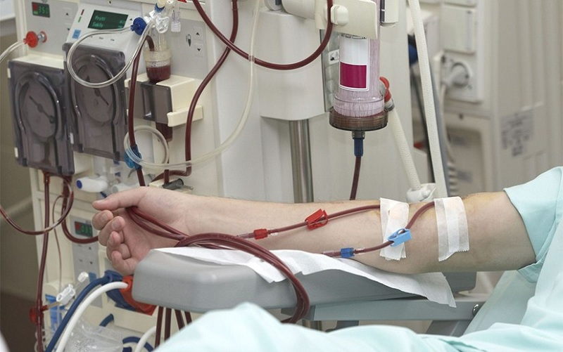 Hemodialysis at home: when, how and for whom.