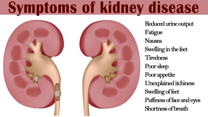 Kidney Failure, An Invisible Disease